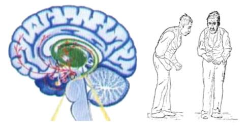 Estate e malattia di Parkinson