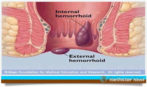 La medicina di emorroidi per togliere sintomi