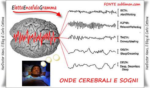 EEG e Sogni