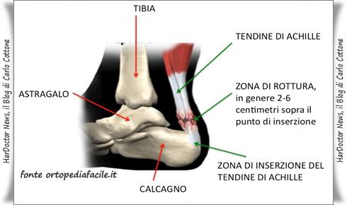 Rottura Tendine di Achille