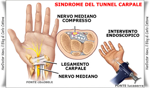 sindrome del tunnel carpale2