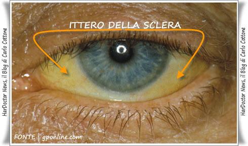 Ittero sclerale
