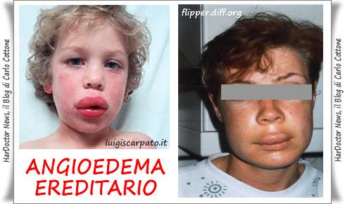 Angioedema Ereditario