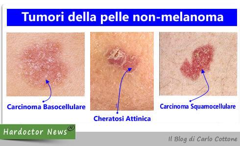 Tumori della pelle non-melanoma
