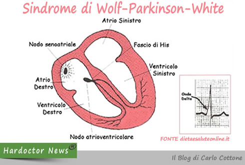 Sindrome di Wolf-Parkinson-Withe 2