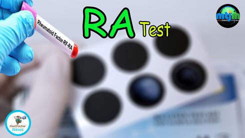 Reuma test, possibili limiti!