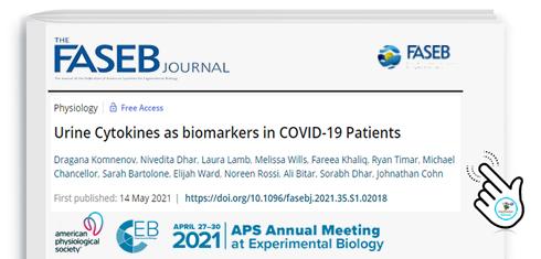 Citochine urinarie come biomarcatori nei pazienti COVID-19
