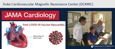 Vaccini anti Covid-19 a mRna e miocardite